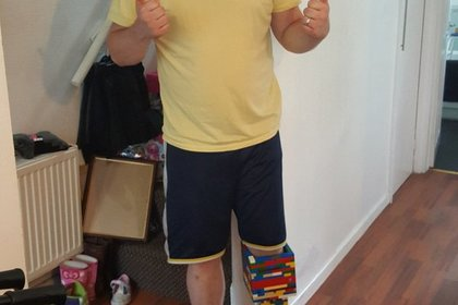 Мужчина собрал изконструктора Lego протез ноги