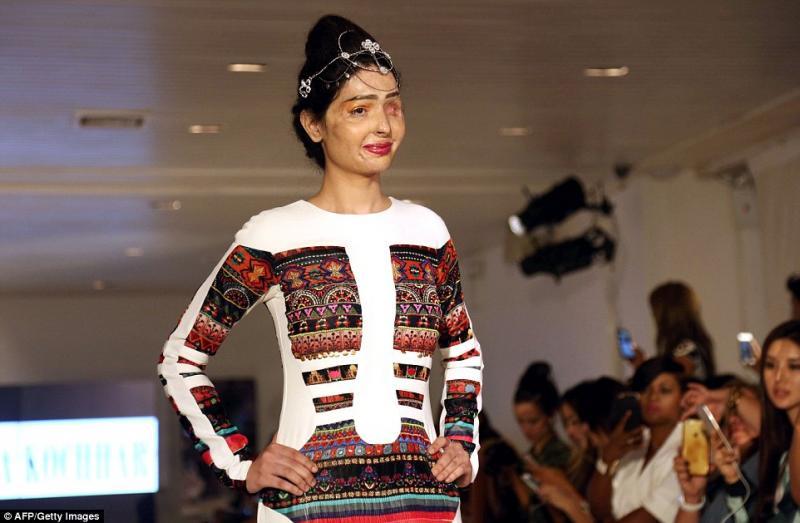 Модель собожженным лицом выступила наНеделе моды вНью-Йорке