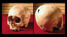 Череп девочки-гидроцефала из Шахри-Сухте со следами трепанации, ок. 4800 года до н.э. Фото: Музей истории медицины, Тегеран